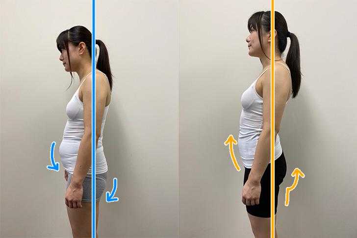 骨盤ガードル3Dスリムエルの着用によるカロリー増加を検証(ビフォーアフター)