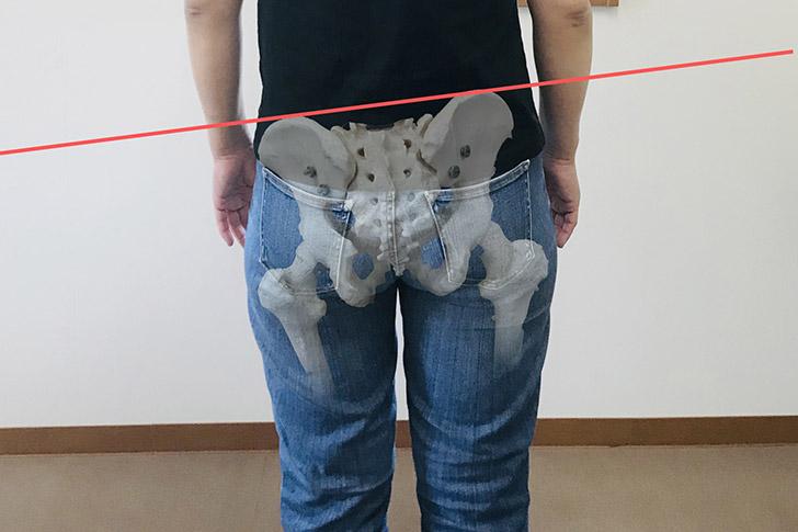 「あなたは知ってる?」骨盤歪みの正体とは、なぜ起きるのか…